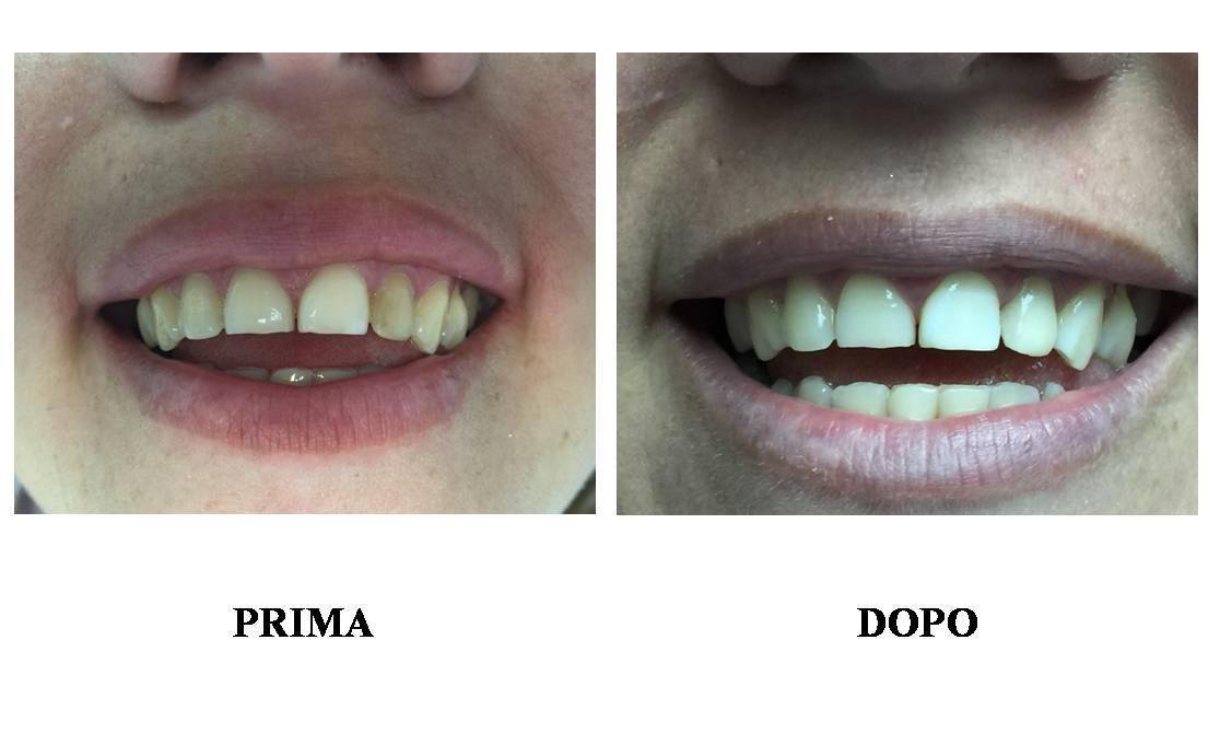 Immagine descrittiva di Conservativa / Endodonzia