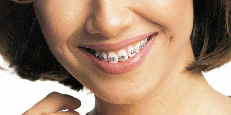 Immagine descrittiva di Ortodonzia / Gnatologia